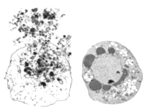Necrosis (left) and apoptosis (right).